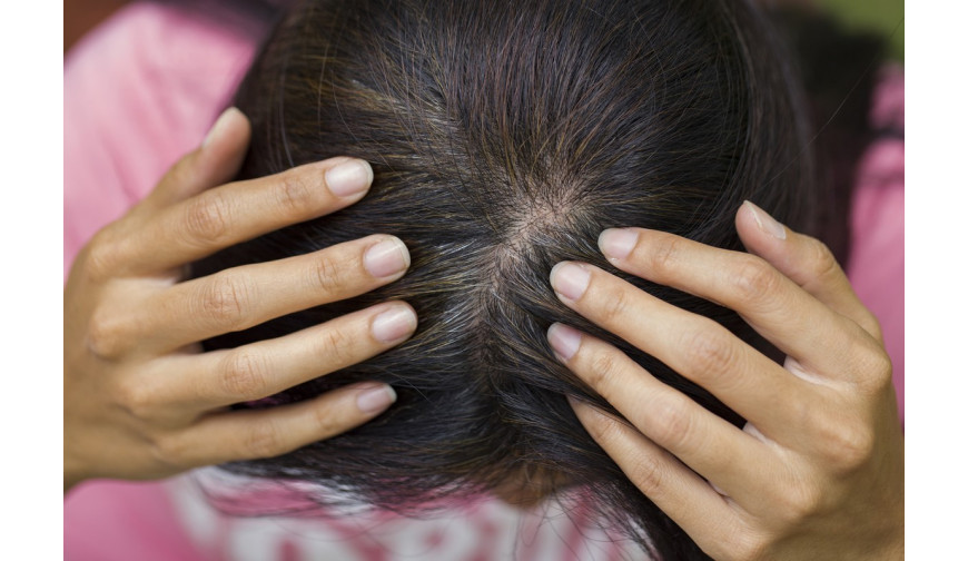 De beaux cheveux commencent par un cuir chevelu sain